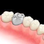メタルクラウンin歯列
