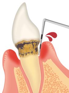 歯周病検査02