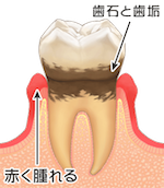 歯周病進行臼歯01-2