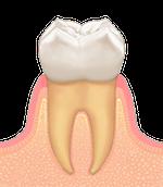 歯周病進行臼歯01_0