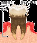 歯周病進行臼歯01_3