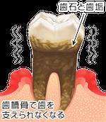歯周病進行臼歯01_4
