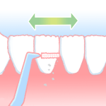歯間ブラシ01